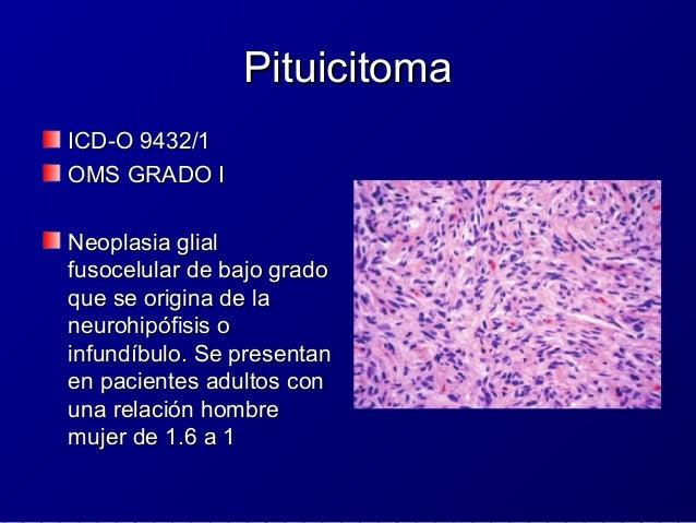 Inmunohistoquímica e IndiceInmunohistoquímica e Indice ProliferativoProliferativo Los pituicitomasLos pituicitomas son pos...