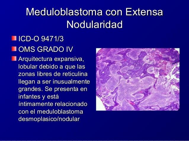 Glioblastoma con ComponenteGlioblastoma con Componente OligodendroglialOligodendroglial Son glioblastomasSon glioblastomas...