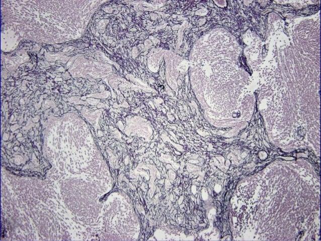 Meduloblastoma con DiferenciaciónMeduloblastoma con Diferenciación Miogénica vs MedulomioblastomaMiogénica vs Medulomiobla...