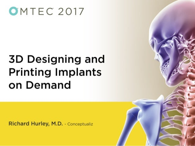 3D Designing and Printing Implants on Demand - OMTEC 2017