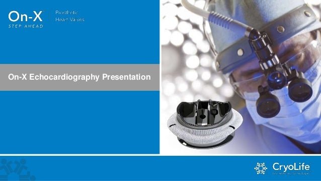 On-X Echocardiography Presentation