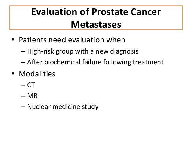Oncoimaging: prostate cancer