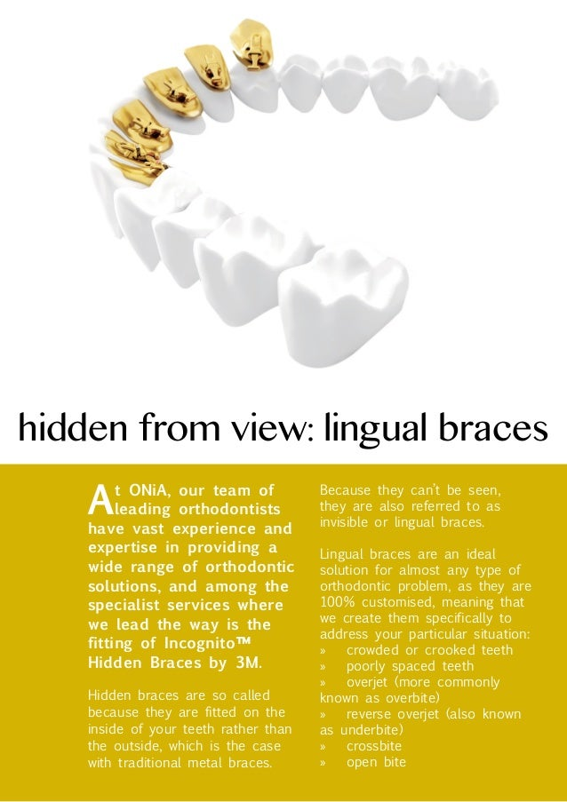 hidden from view: lingual braces  A  Because they can't be seen, they are also referred to as invisible or lingual braces....