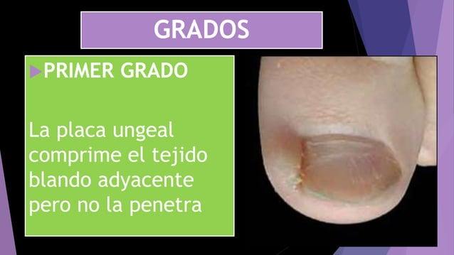 GRADOS PRIMER GRADO La placa ungeal comprime el tejido blando adyacente pero no la penetra