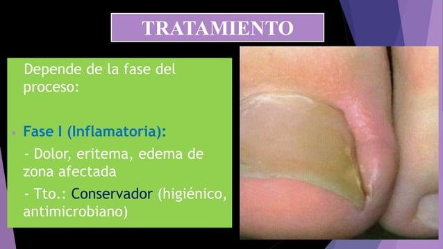 Depende de la fase del proceso: • Fase I (Inflamatoria): - Dolor, eritema, edema de zona afectada - Tto.: Conservador (hig...