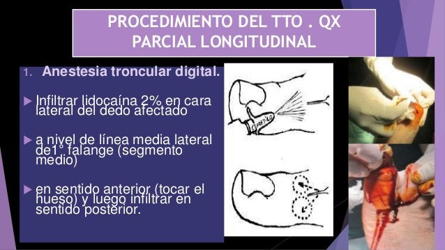PROCEDIMIENTO DEL TTO . QX PARCIAL LONGITUDINAL 1. Anestesia troncular digital.  Infiltrar lidocaína 2% en cara lateral d...
