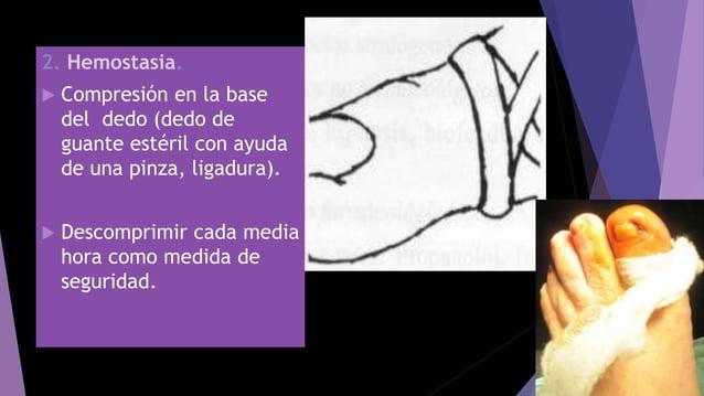 2. Hemostasia.  Compresión en la base del dedo (dedo de guante estéril con ayuda de una pinza, ligadura).  Descomprimir ...