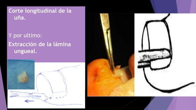 Corte longitudinal de la uña. Y por ultimo: Extracción de la lámina ungueal.