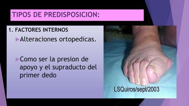 TIPOS DE PREDISPOSICION: 1. FACTORES INTERNOS Alteraciones ortopedicas. Como ser la presion de apoyo y el supraducto del...