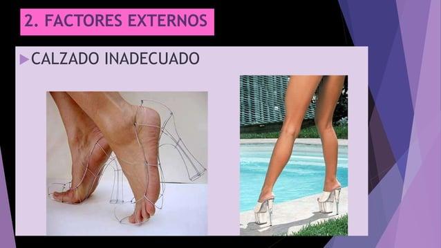 2. FACTORES EXTERNOS CALZADO INADECUADO