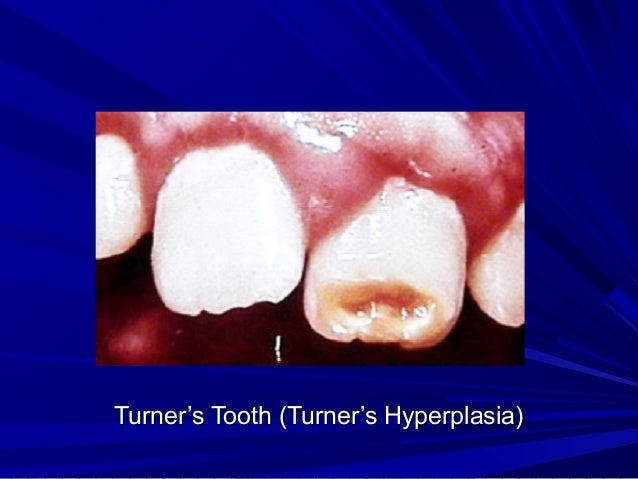 Turner's Tooth (Turner's Hyperplasia)Turner's Tooth (Turner's Hyperplasia)
