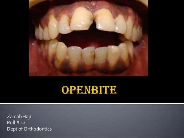 Zainab Haji Roll # 12 Dept of Orthodontics