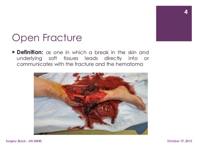 Lovely ... 4. 4 Open Fracture  Definition: ...