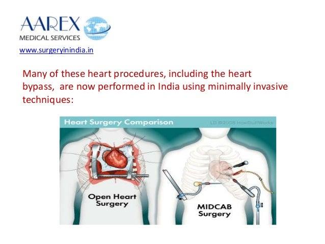 Open heart surgery vs minimally invasive cardiac bypass surgery cardiac defibrillator 3 ccuart Images