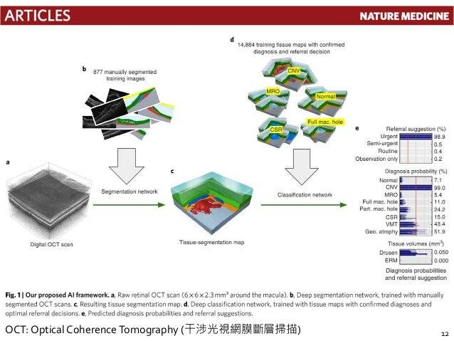 12OCT: Optical CoherenceTomography (干涉光視網膜斷層掃描)