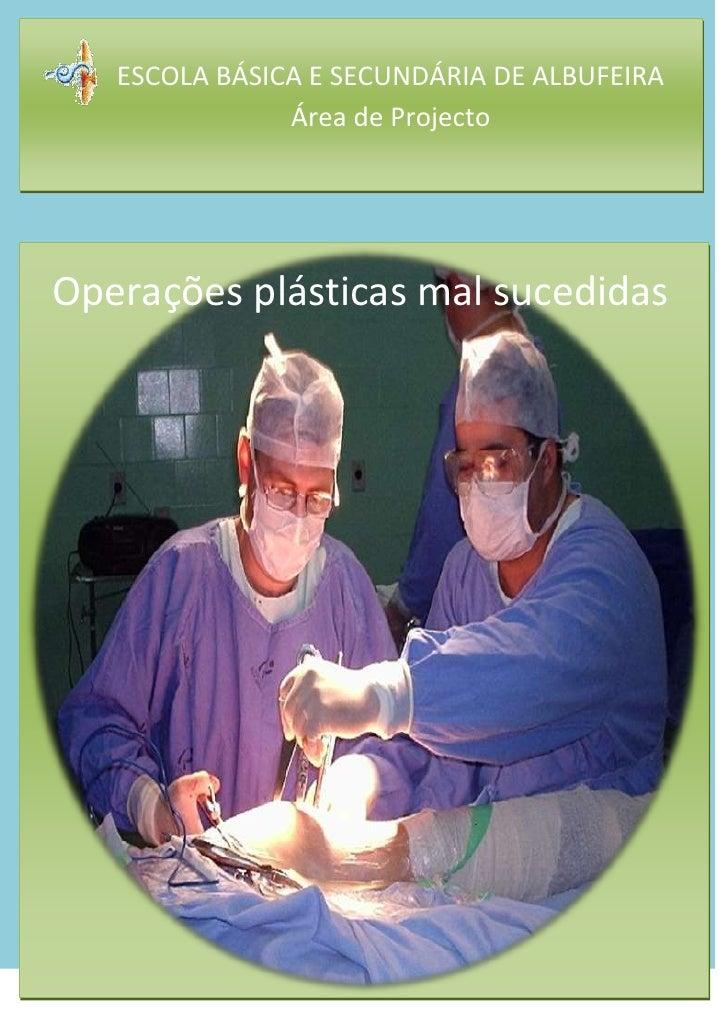Escola Básica e Secundária de AlbufeiraÁrea de Projecto       -822961492760Operações plásticas mal sucedidas<br />Operaçõ...