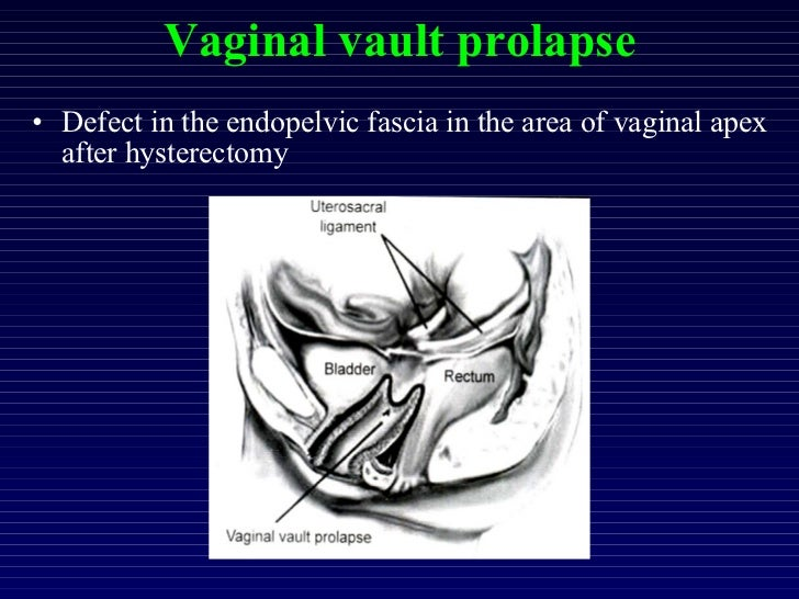 OPERATIONS FOR NULLIPAROUS PROLAPSE AND VAGINAL VAULT PROLAPSE, Mob:…