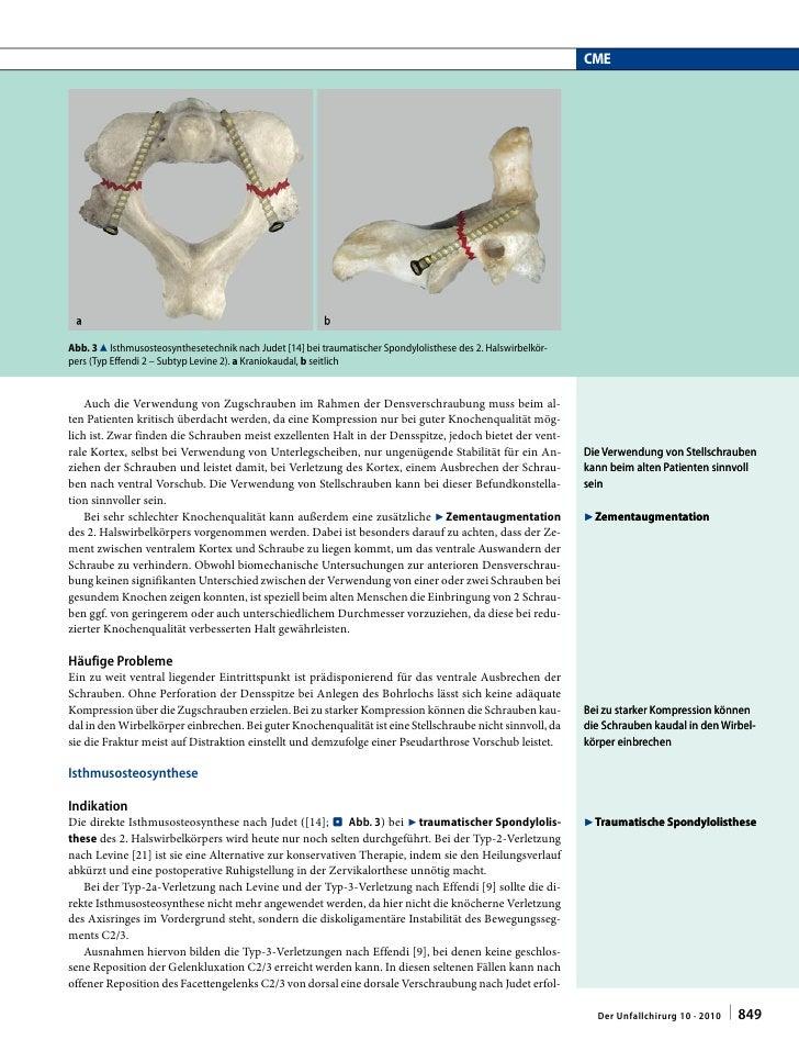 Groß Obere Halswirbelsäule Anatomie Galerie - Anatomie Ideen ...