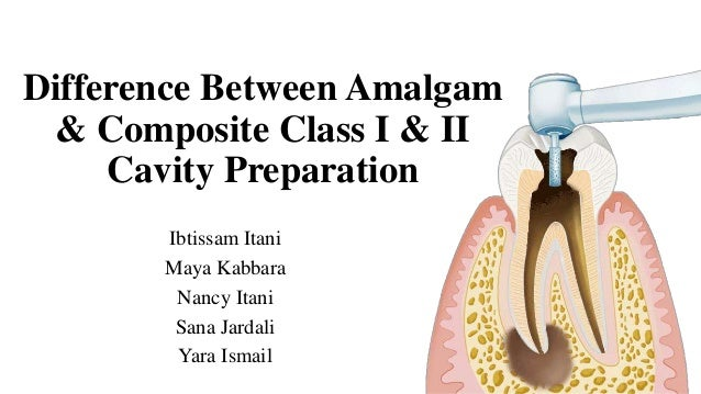 Difference Between Amalgam & Composite Class I & II Cavity Preparation Ibtissam Itani Maya Kabbara Nancy Itani Sana Jardal...