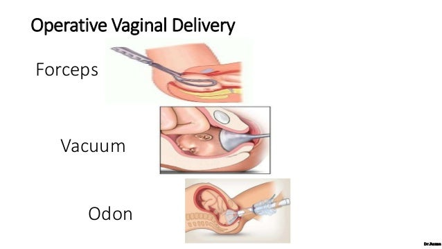 Operative Vaginal Delivery (Dr Rozan)
