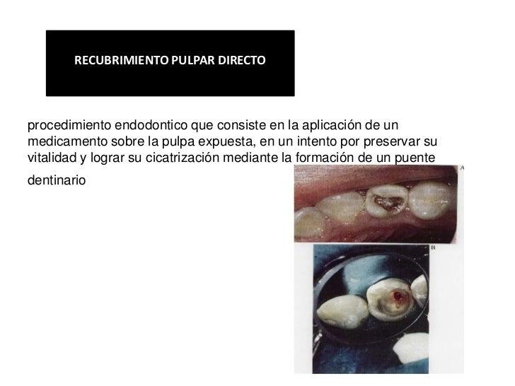 RECUBRIMIENTO PULPAR DIRECTOprocedimiento endodontico que consiste en la aplicación de unmedicamento sobre la pulpa expues...