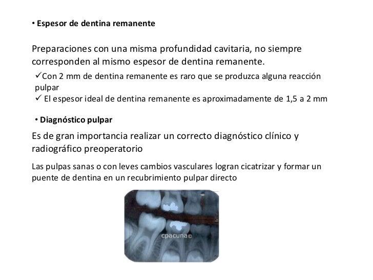 • Espesor de dentina remanentePreparaciones con una misma profundidad cavitaria, no siemprecorresponden al mismo espesor d...