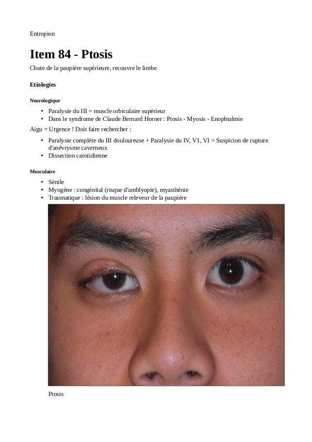 Ophtalmologie ecn for Interieur paupiere inferieure rouge