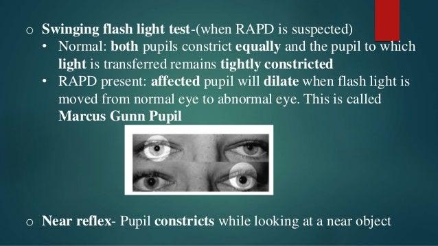 flash of light in eyes