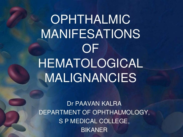 OPHTHALMICMANIFESATIONS      OFHEMATOLOGICAL MALIGNANCIES        Dr PAAVAN KALRADEPARTMENT OF OPHTHALMOLOGY,     S P MEDIC...