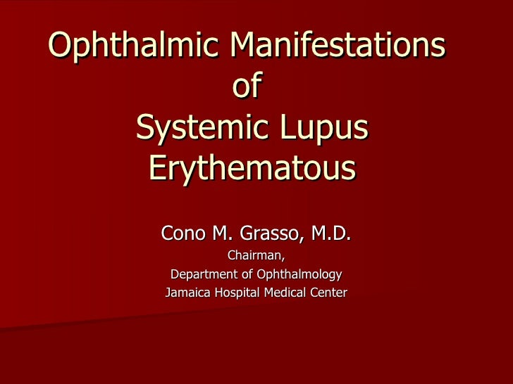 Ophthalmic Manifestations  of  Systemic Lupus Erythematous Cono M. Grasso, M.D. Chairman, Department of Ophthalmology Jama...
