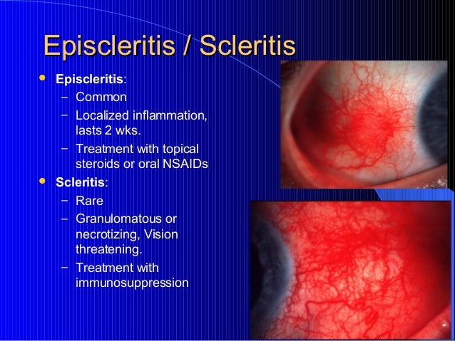 topical steroids for herpes zoster ophthalmicus