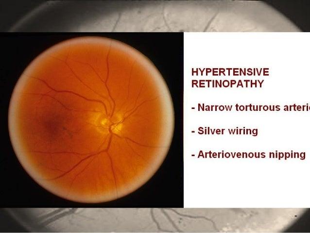 ophthalmology revision rh slideshare net