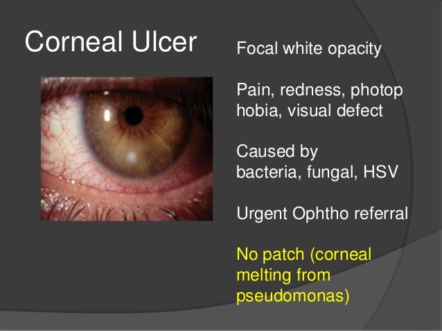 Ophthalmology Board Review- Emergency Medicine 2014
