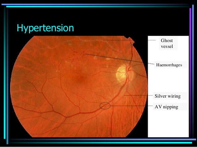 ophthalmoscopic slides rh slideshare net copper vs silver wiring eye Concerned Eyes