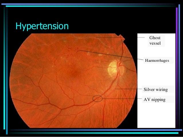 ophthalmoscopic slides rh slideshare net silver wiring retina arteries Silver Wiring Retinal Vessels