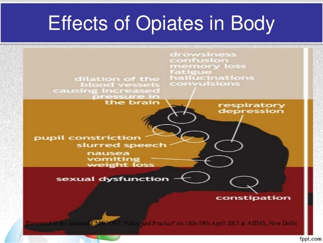 Opioid pharmacology an overview with emphasis on clinical relevance