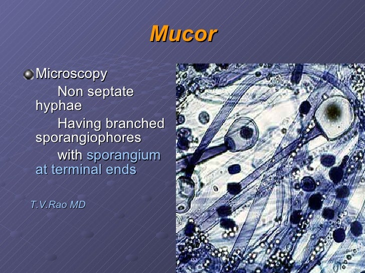 Opportunistic fungal infections mucor ccuart Image collections