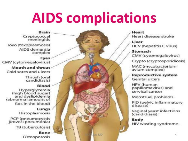 aids and cns, Human Body