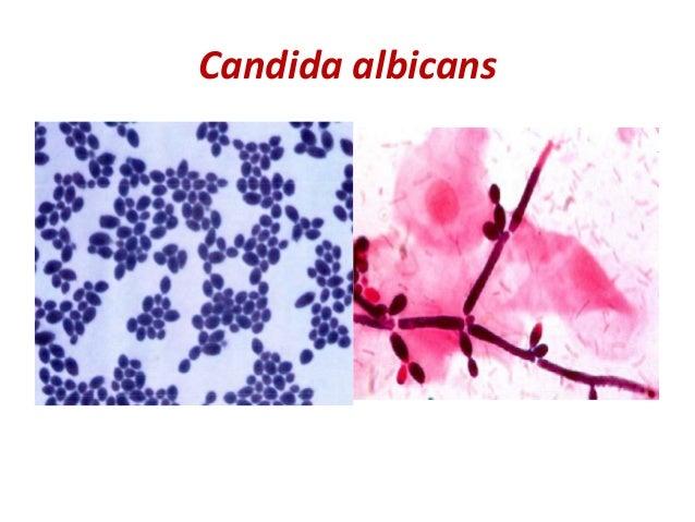 candida albicans mycose