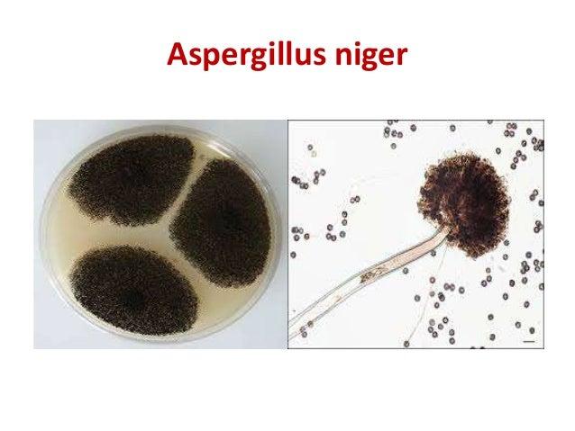 Cryptococcus laurentii colony morphology definition