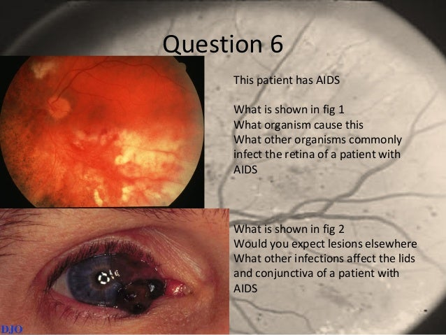 Question 6 This patient has AIDS What is shown in fig 1 What organism cause this What other organisms commonly infect the ...