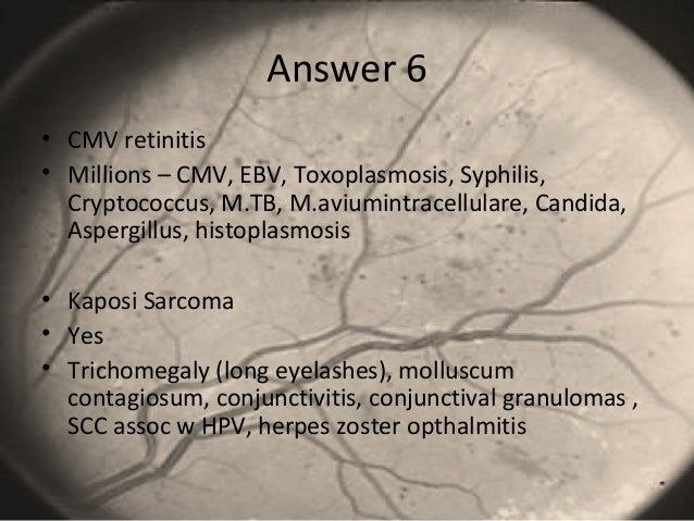 Answer 6 • CMV retinitis • Millions – CMV, EBV, Toxoplasmosis, Syphilis, Cryptococcus, M.TB, M.aviumintracellulare, Candid...
