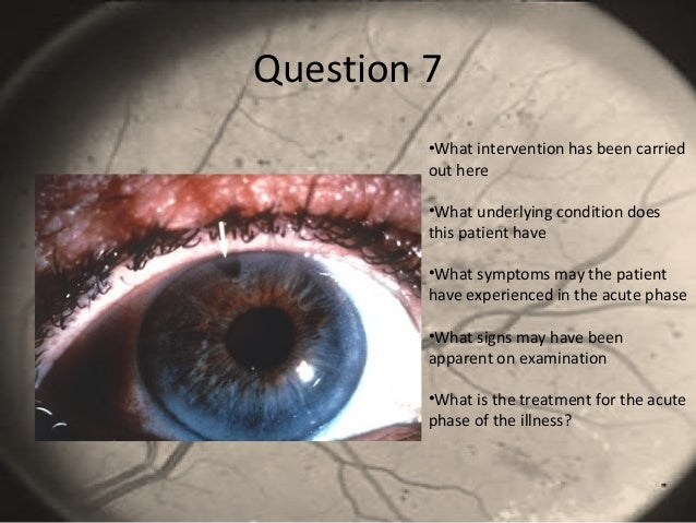 Question 7 •What intervention has been carried out here •What underlying condition does this patient have •What symptoms m...