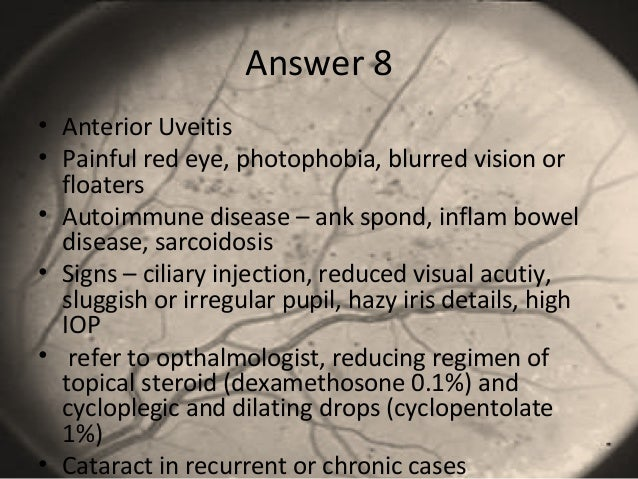 Answer 8 • Anterior Uveitis • Painful red eye, photophobia, blurred vision or floaters • Autoimmune disease – ank spond, i...