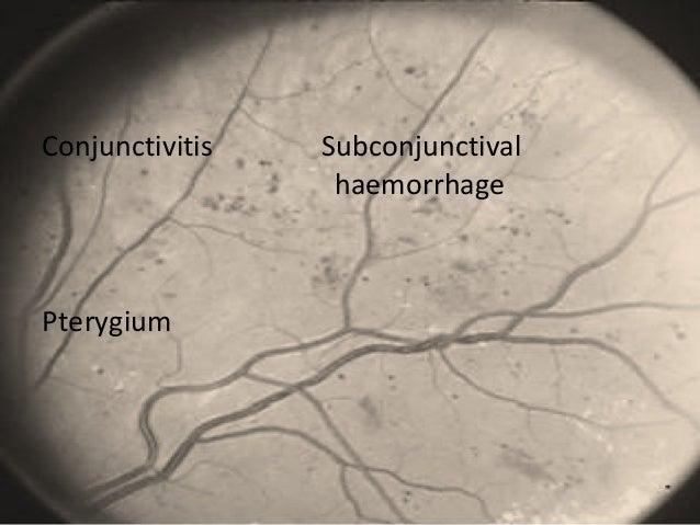 Conjunctivitis Subconjunctival haemorrhage Pterygium