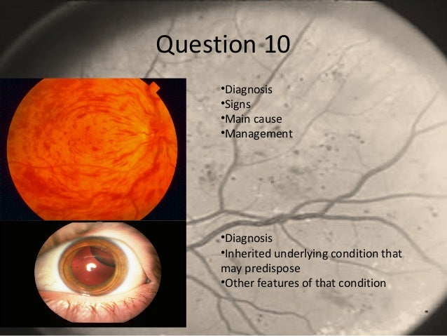 Question 10 •Diagnosis •Signs •Main cause •Management •Diagnosis •Inherited underlying condition that may predispose •Othe...