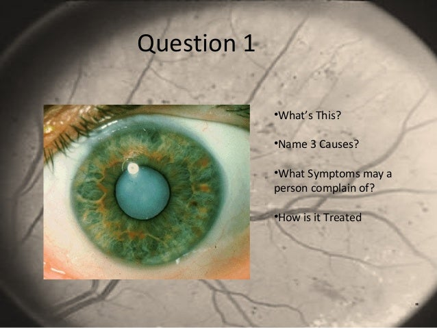 Question 1 •What's This? •Name 3 Causes? •What Symptoms may a person complain of? •How is it Treated