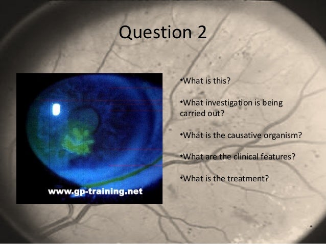 Question 2 •What is this? •What investigation is being carried out? •What is the causative organism? •What are the clinica...