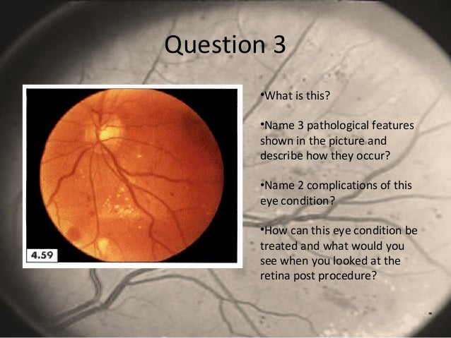 Question 3 •What is this? •Name 3 pathological features shown in the picture and describe how they occur? •Name 2 complica...