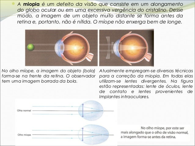 2c5c93f136 12.  A hipermetropia é um defeito da visão que consiste em um encurtamento  do globo ocular ...